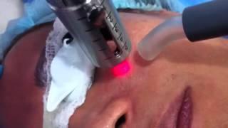En tratamiento con láser india poros en para costo facial
