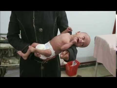 بي_بي_سي_ترندينغ | #اطفال_الغوطة_تموت_جوعا هاشتاغ لمناصرة الأطفال في المنطقة السورية المحاصرة #سوريا  - نشر قبل 2 ساعة