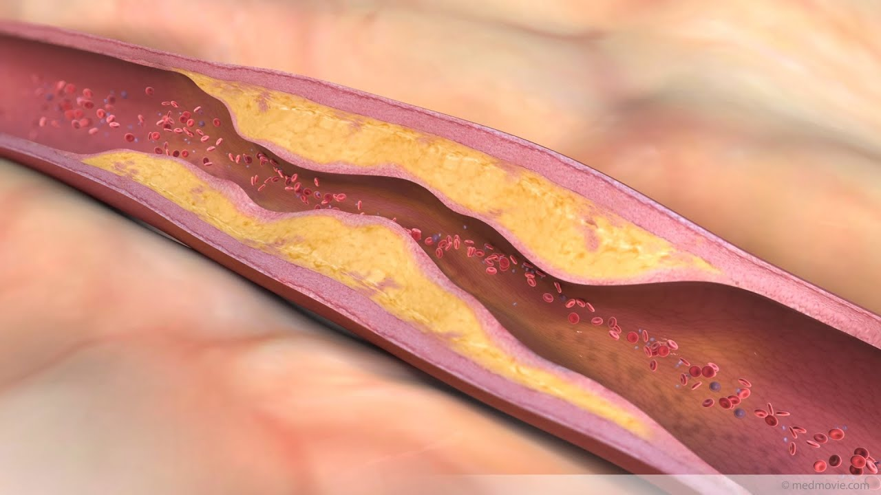 what is atherosclerosis? - youtube, Human Body