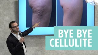 Liftique ByeBye Cellulite Reduction