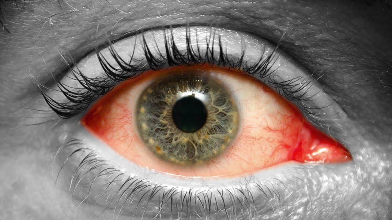 Como detectar diabetes dandole un vistazo a tus ojos youtube for Como se maquillan los ojos ahumados