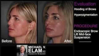 Endoscopic Brow Lift, Mid-Face Suspension & More - Dr. Elam's Evaluation - #ElamFirstLook