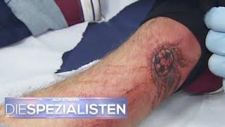 Tattoofail: Tattoo mit Füller Tinte gestochen | Oliver Dreier | Die Spezialisten | SAT.1 TV