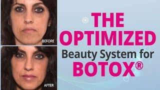 The Optimized Beauty System for BOTOX® | Edelstein Cosmetic Thumbnail