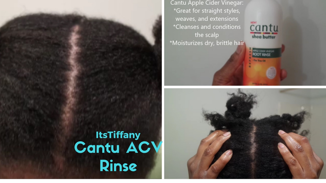 How To Stop Itchy Scalp On Natural Hair