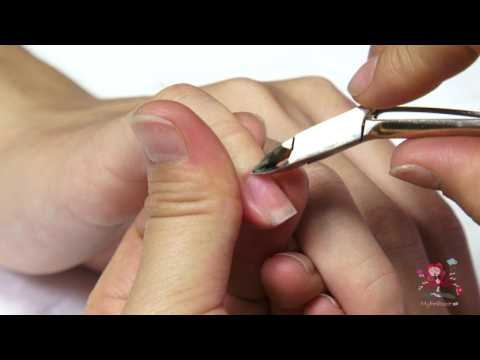 Nails: Removing Fingernail Cuticles
