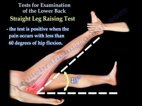 Tests For Examination Of The Lower Back - Everything You Need To Know - Dr. Nabil Ebraheim