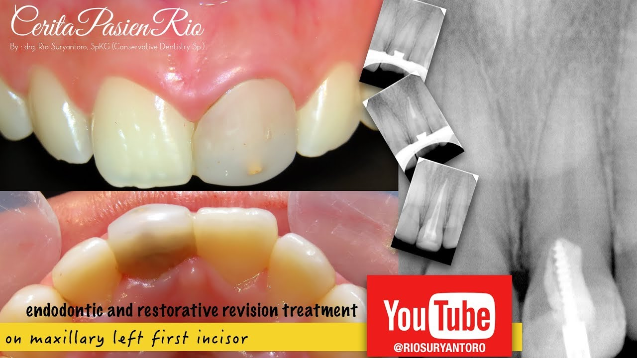 Endodontic Restorative Treatment On Maxillary Incisor Perawatan