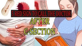 5 Common Signs of Serious Complications After C Section!