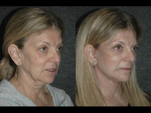 Facelift Under Local No General Anesthesia on 65 Year Old Woman