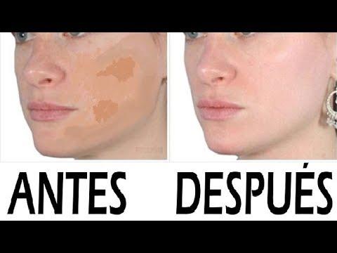 remedios naturales para manchas de sol en la cara