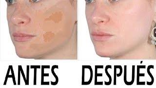MANCHAS EN LA CARA COMO QUITARLAS | Trucos y Remedios caseros para blanquear la piel