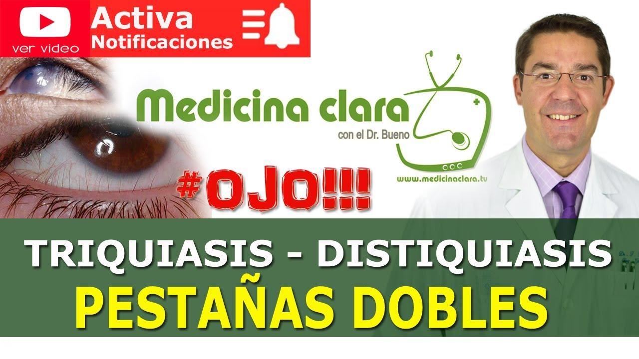 Pestañas DOBLES que crecen hacia el ojo: Triquiasis y Distiquiasis | Medicina Clara