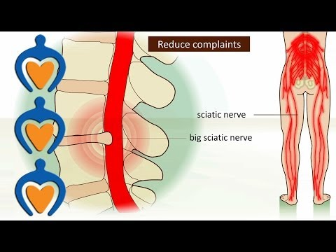 hqdefault - Causes Of Lower Back Pain And Swollen Feet