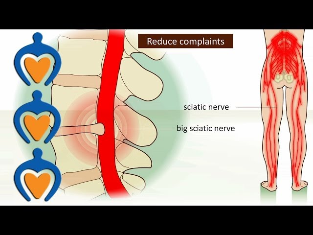 Lower back pain (a.o. sciatica, herniated disk) - It\'s causes, symptoms and treatment.