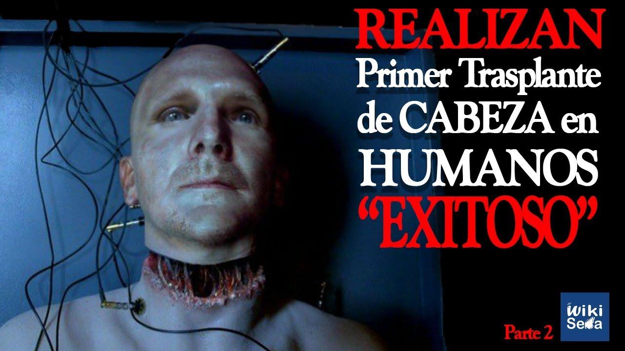 1° Trasplante de Cabeza Humano