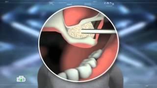 видео Какие бывают виды зубных имплантов