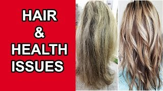 List of Hair Problems and Related Health Problems