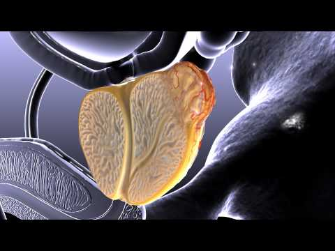 Prostate Cancer Animation