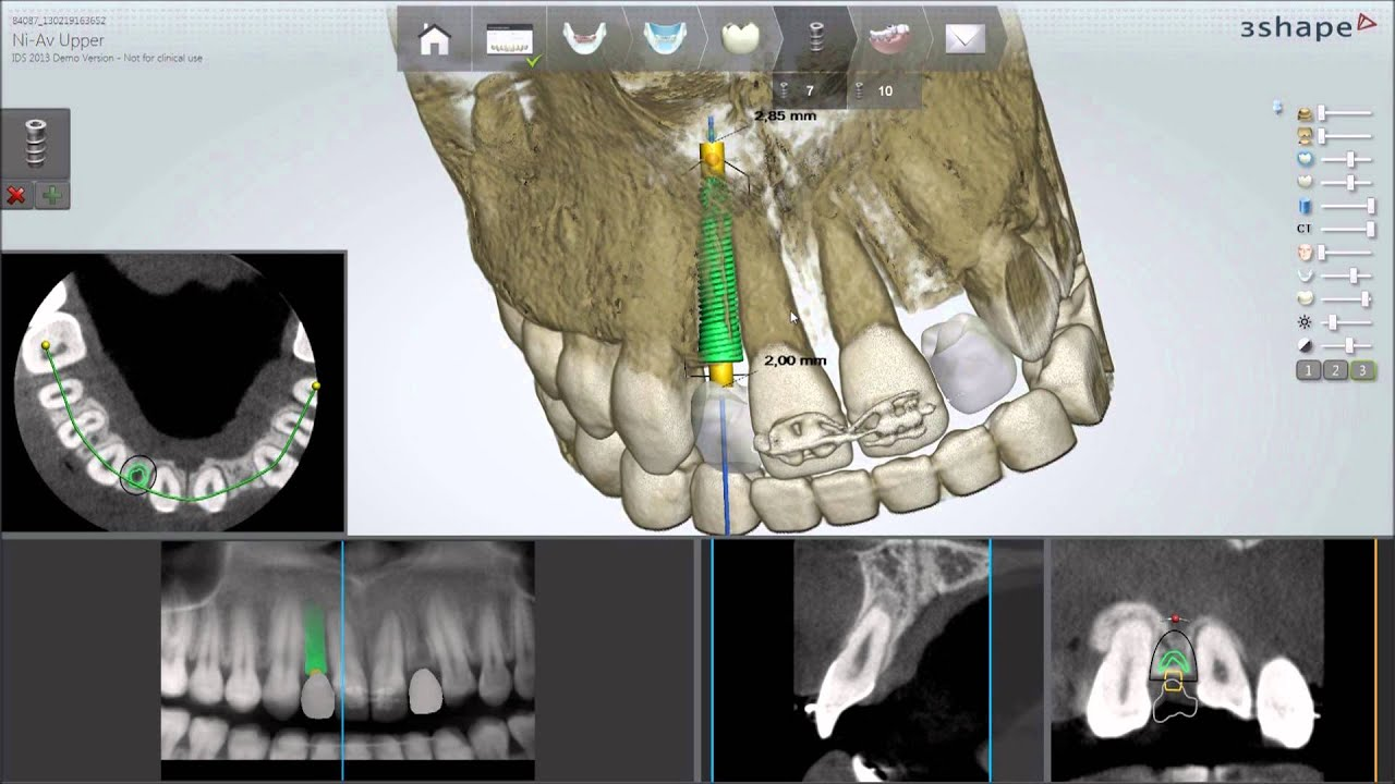 Dental System 2013 Implant Planning And Guided Surgery