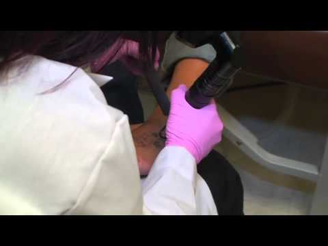 Indy Laser Tattoo Removal - YouTube