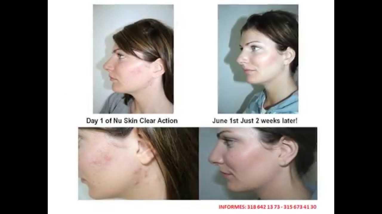 El tratamiento láser del acné en samare