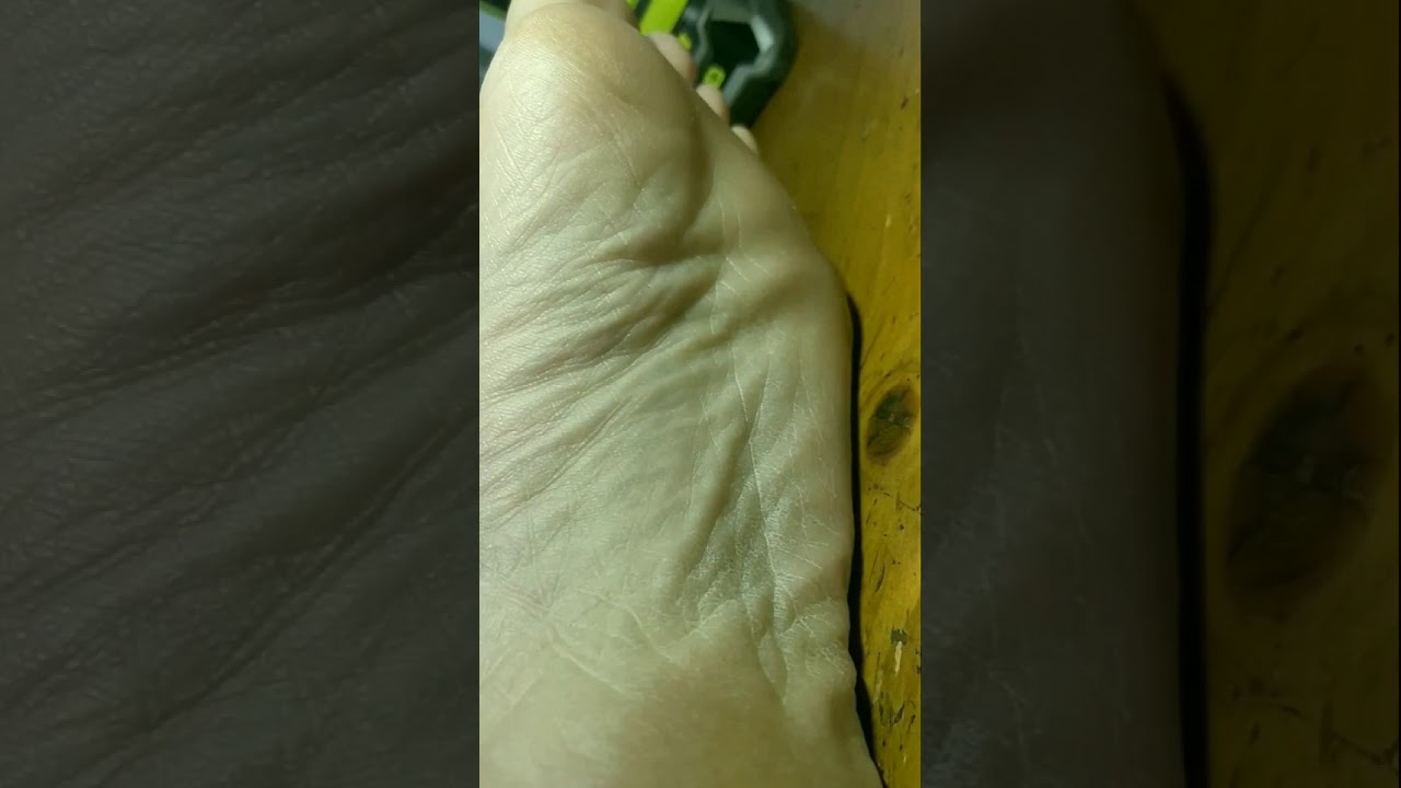 Cramp Fasciculation Syndrome twitching sole of foot