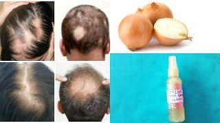 100% Hair Growth (Scientifically Proven)  || Best Hair Loss Treatment For Alopecia & Baldness