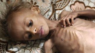 Yemen Çocuklar açlıktan ölüyor