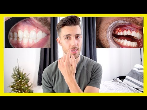 GUM GRAFT SURGERY | What It Feels Like