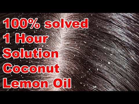 Dandruff Problem?   100% solved Within 1 Hour Using Coconut & Lemon Oil    Home Remedies