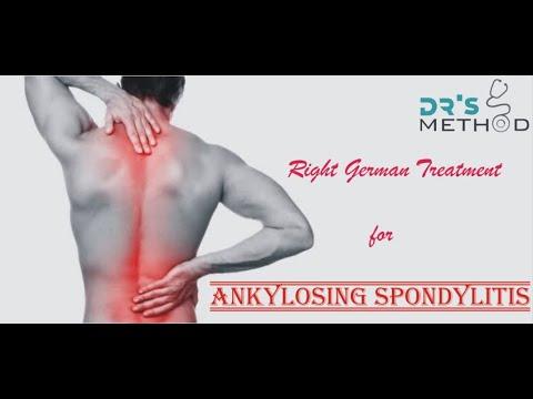 What Is Ankylosing Spondylitis ? And its treatment in homeopathy(एंकिलॉज़िंग  स्पॉन्डिलाइटिस गठिया )