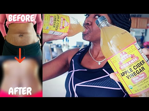 apple-cider-vinegar-for-weight-loss-before-and-after:-30-days-of-acv-&-waist-training-|-pics-inside