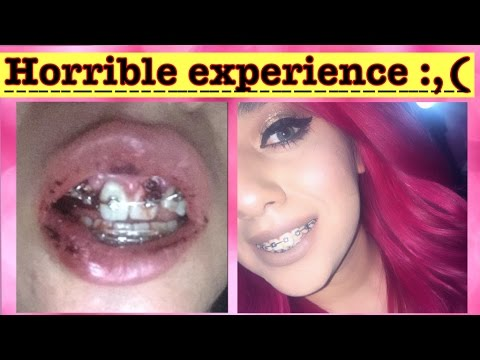 All about my braces | update - YouTube