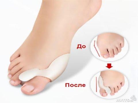 Особенности процедуры лазерного удаления косточек на стопах