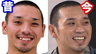 芸能人の歯並びビフォーアフター 過去と現在【千鳥 大悟・イモトアヤコ...