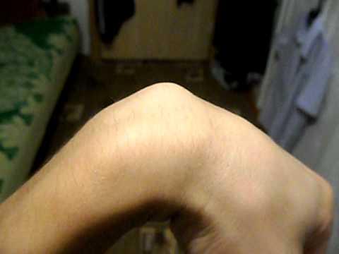 Шышка на лучезапястном суставе что можно после эндопротезирования коленных суставов