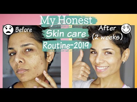 How To Get Rid Of Acne, Discoloration And Uneven Skin Tone/ Skin Care Routine-2019