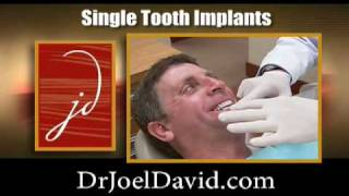 Dental Implant Ad Thumbnail