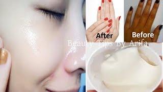 ত্বকের কালো দাগ, মেছতা ,ব্রন এর দাগ দূর করে স্থায়ীভাবে ফর্সা করে|Whiten Your Skin Permanently