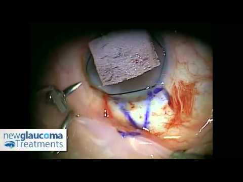 Glaucoma Surgery Canaloplasty Using Mastel Instruments: Part 1 - Dissecting the Superficial Flap