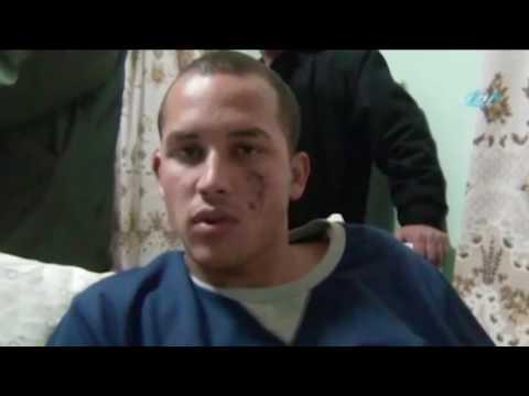 Kayseri'deki patlamada yaralanan askerin patlama esnasında yaşadıkları