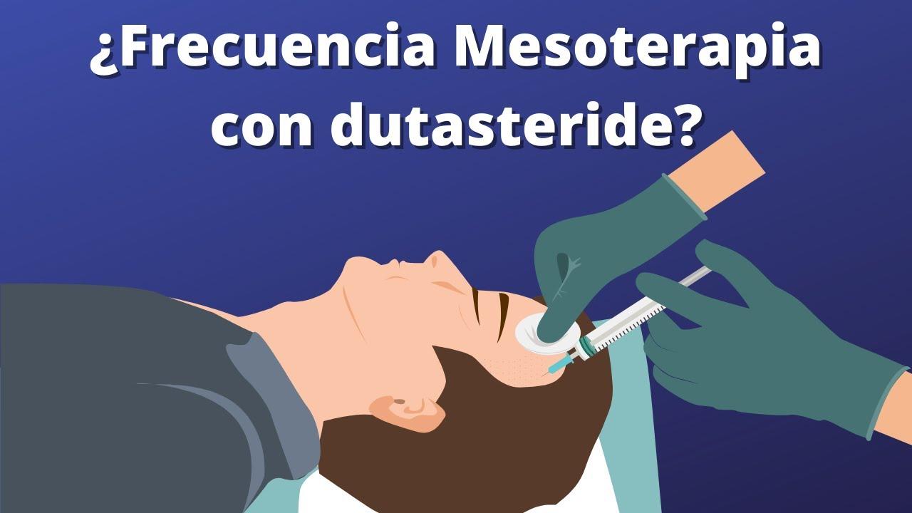 ¿CUÁL ES LA FRECUENCIA RECOMENDADA DE MESOTERAPIA CON DUTASTERIDE?