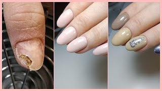 ОНИХОЛИЗИС на ВСЕХ ногтях ЖЕСТЬ 2 маникюра маникюр на клиенте