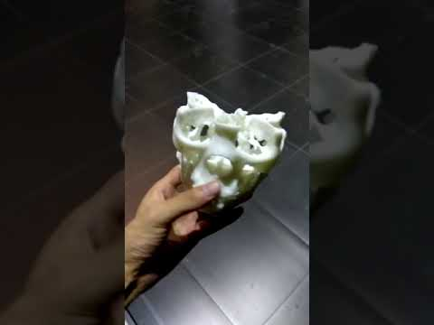 3D Printing Medical Models Rapid Prototyping Surgical Guide ...