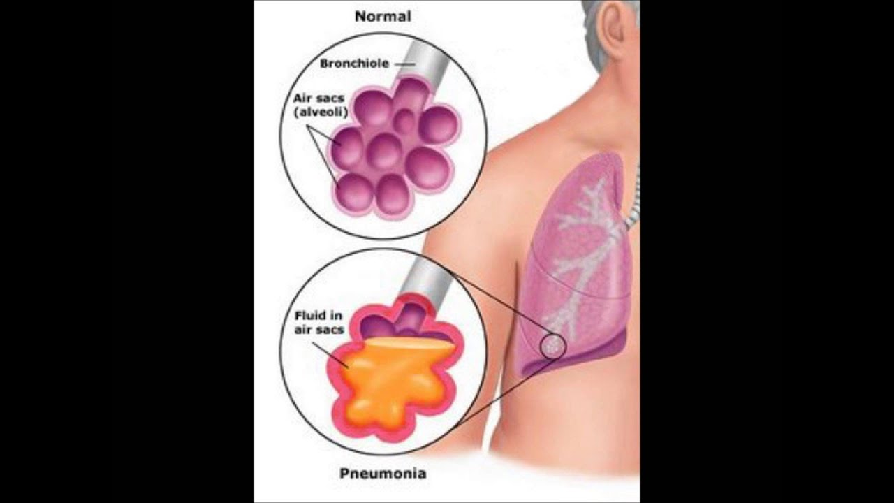 Image Result For Crackle Sounds In Lungs