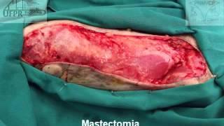 Mastectomia unilateral