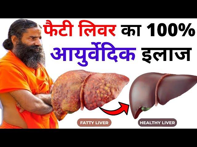 FATTY LIVER - कारण, लक्षण और उपचार | Ayurvedic Treatment of Fatty Liver & Cirrhosis By Baba Ramdev