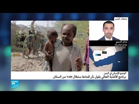 تقرير: المجاعة ستطال 40 بالمئة من سكان اليمن  - 16:56-2018 / 10 / 16