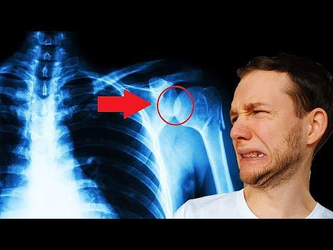 Arthrose: Zerstörter Knorpel   Schmerzen ohne Ende   Heilung möglich?   Erklärung & Ernährung